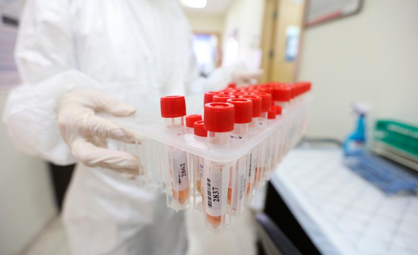 23 وفاة و1440 إصابة بفيروس كورونا و2546 حالة تعاف خلال الـ24 ساعة الأخيرة